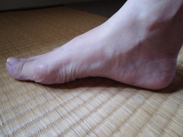 足で一番臭いのはどこ?